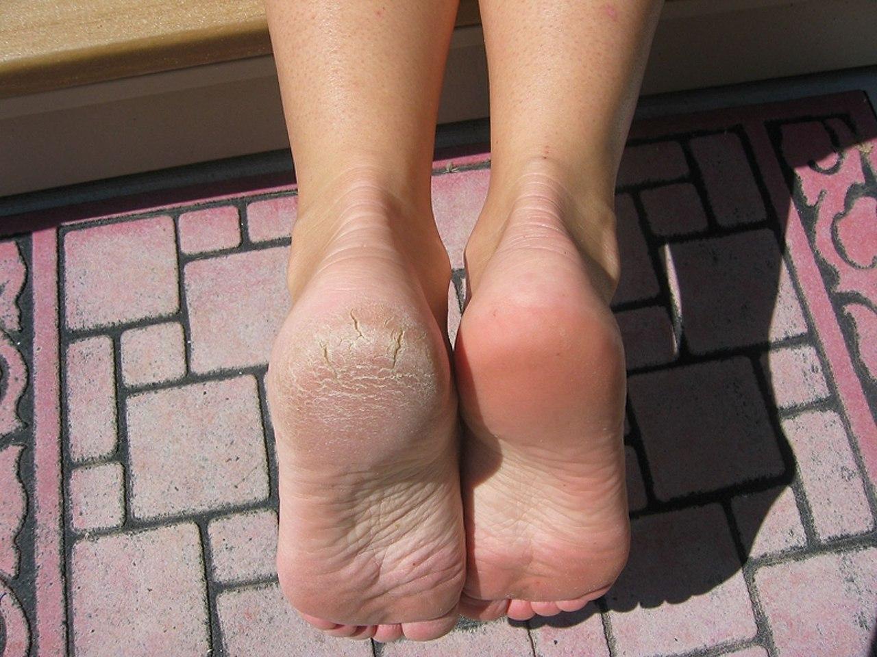Фотогрaфиe ноги и пятки дeвушeк 3 фотография